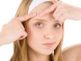 imgres acne